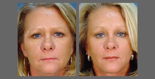 A Review On Endoscopic Brow Lifting